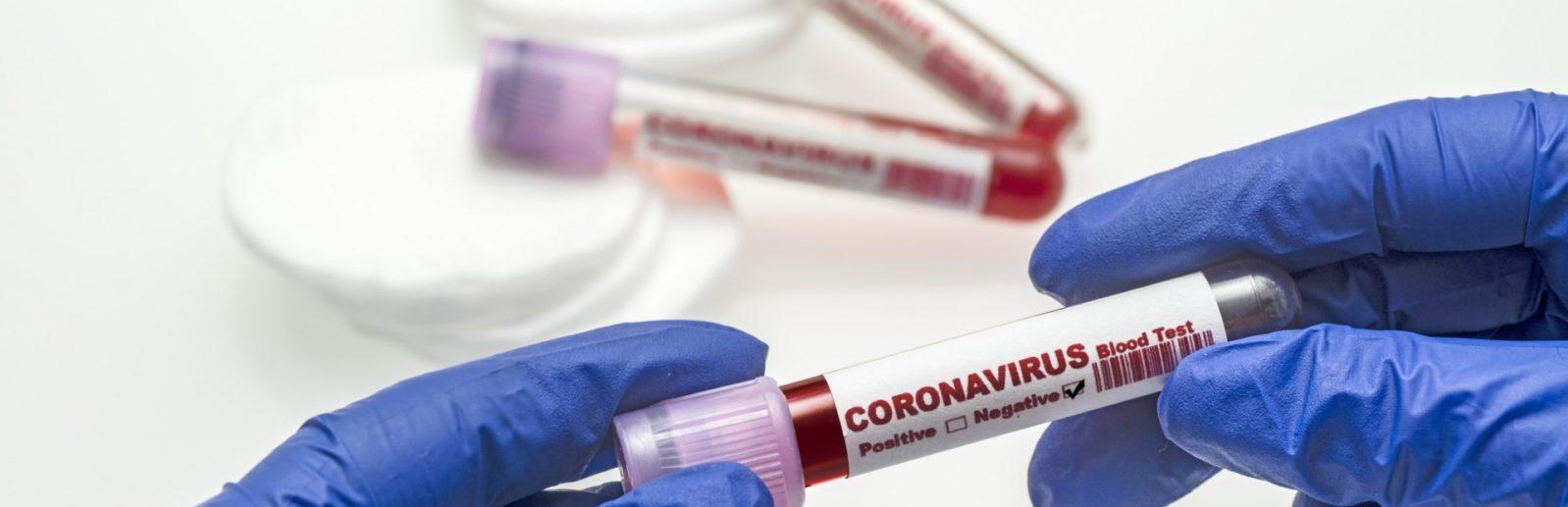 Коронавирус в крыму реальная информация